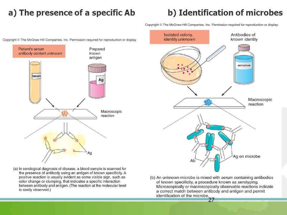 27 a) The presence of a specific Ab b) Identification of microbes