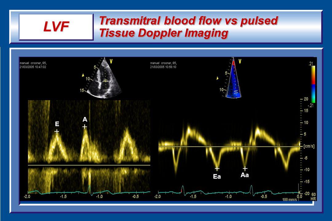 Transmitral blood flow vs pulsed Tissue Doppler Imaging E A Ea Aa LVF