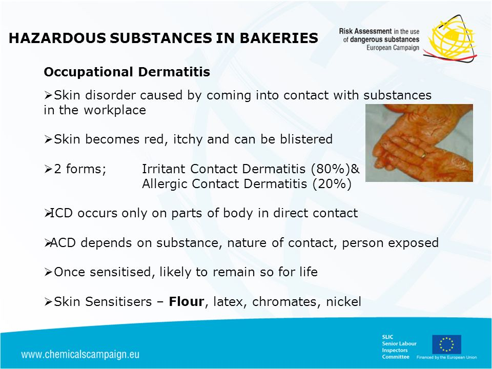 HAZARDOUS SUBSTANCES IN BAKERIES Occupational Dermatitis ICD & ACD can occur simultaneously (exposure to irritants and sensitisers) Substances which are skin irritants or sensitisers have X i on the packaging CPLCLP Corrosive substances can also cause burns