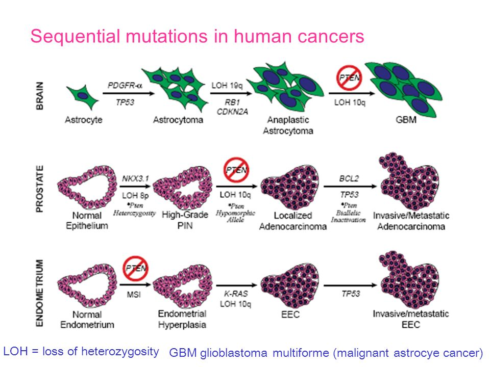 Sequential mutations in human cancers LOH = loss of heterozygosity GBM glioblastoma multiforme (malignant astrocye cancer)