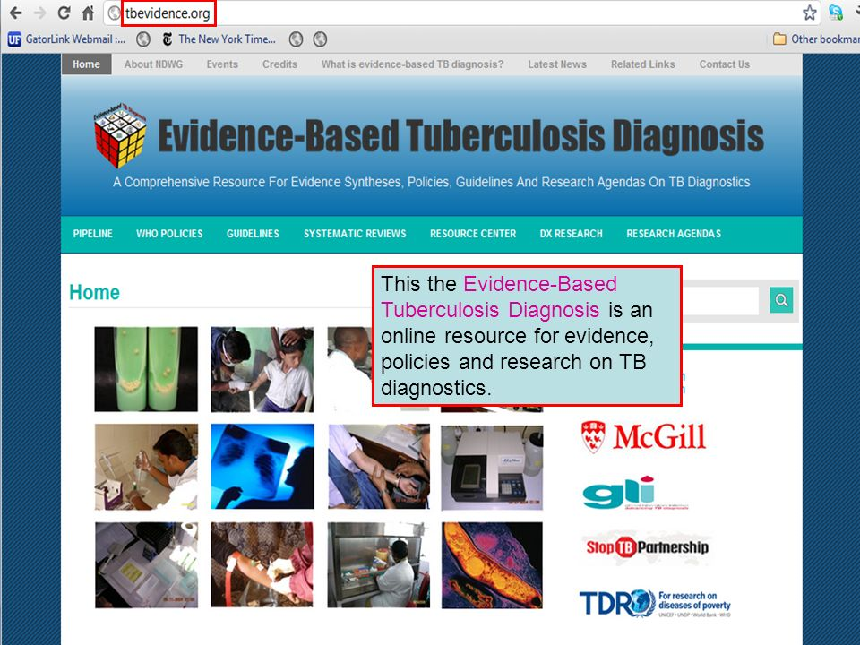 This the Evidence-Based Tuberculosis Diagnosis is an online resource for evidence, policies and research on TB diagnostics.