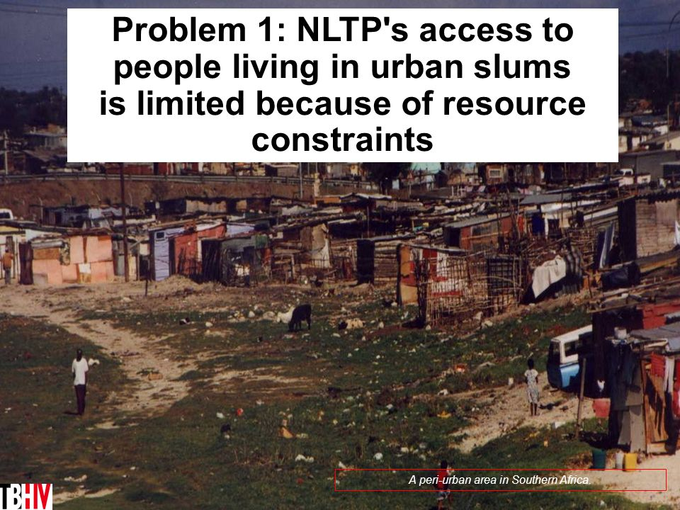 10 Journalists can advocate for equitable access to TB/HIV detection and treatment TB/HIV and poverty often go hand in hand A peri-urban area in South