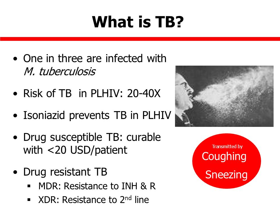 What is TB. One in three are infected with M.