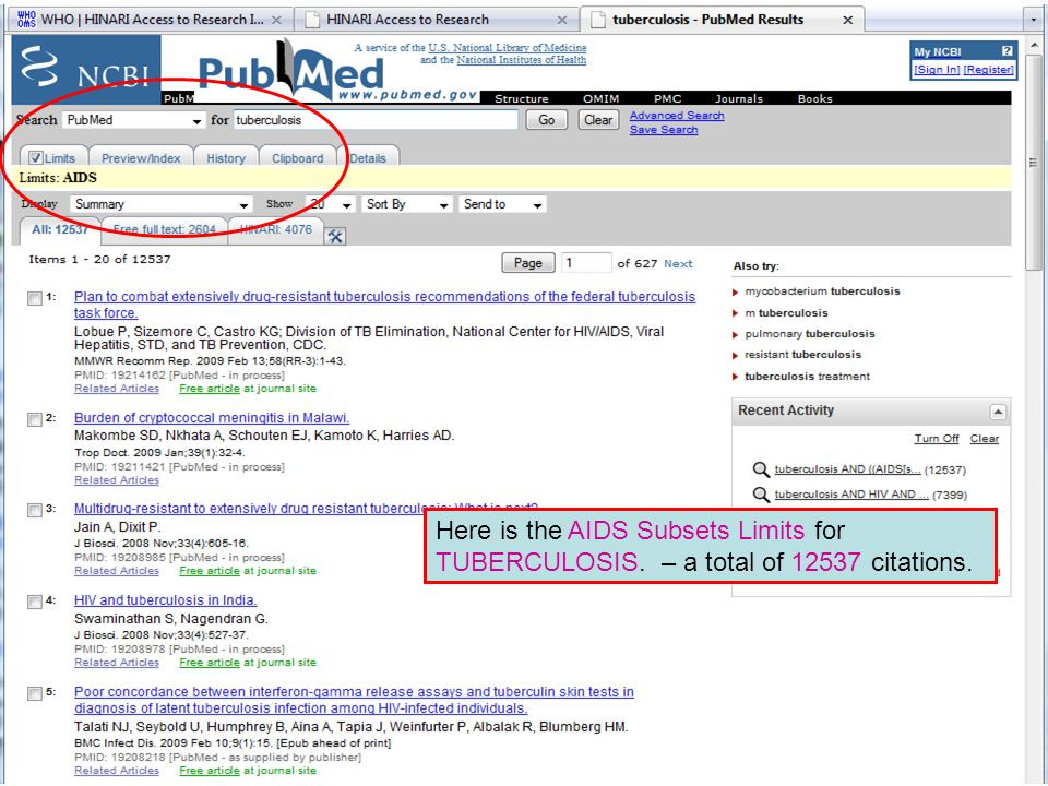 Limit by Subset Here is the AIDS Subsets Limits for TUBERCULOSIS. – a total of 12537 citations.