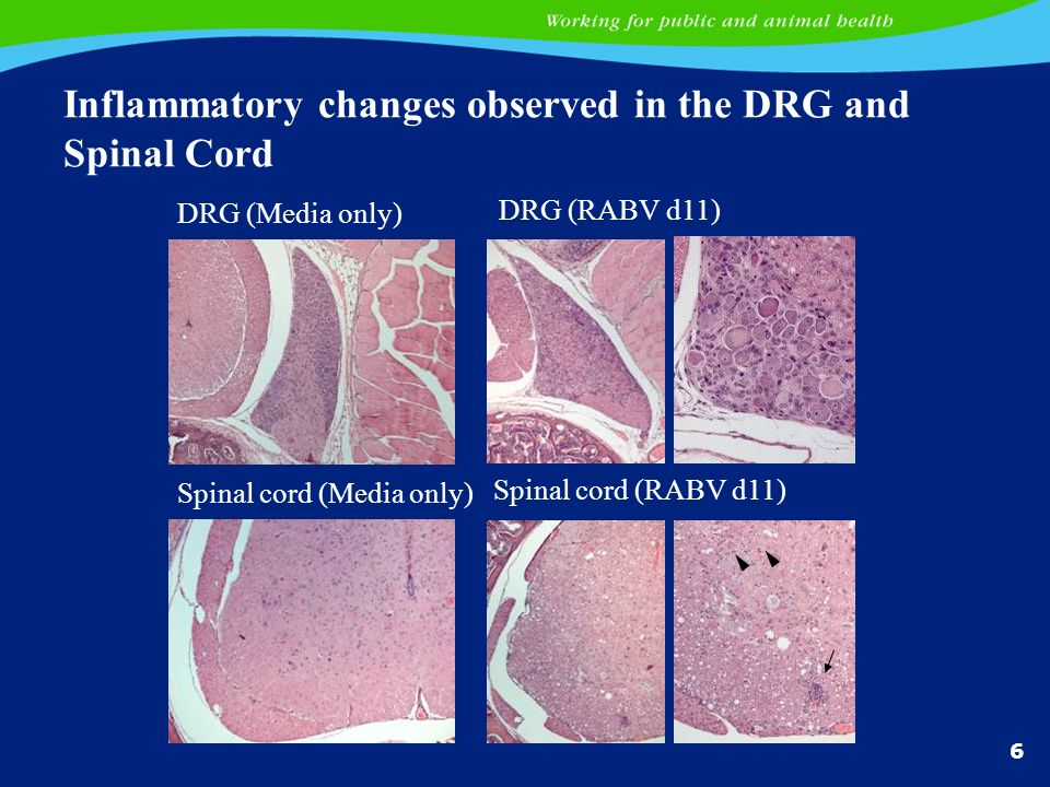 6 Inflammatory changes observed in the DRG and Spinal Cord DRG (Media only) DRG (RABV d11) Spinal cord (Media only) Spinal cord (RABV d11)