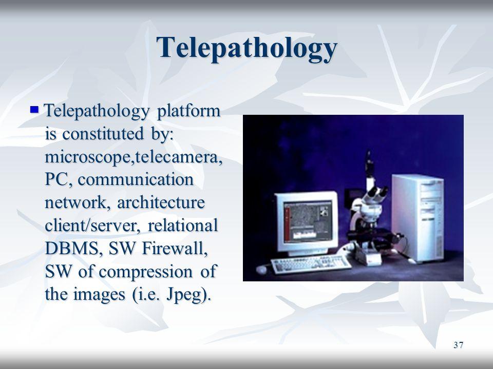 37 Telepathology Telepathology platform Telepathology platform is constituted by: is constituted by: microscope,telecamera, microscope,telecamera, PC,