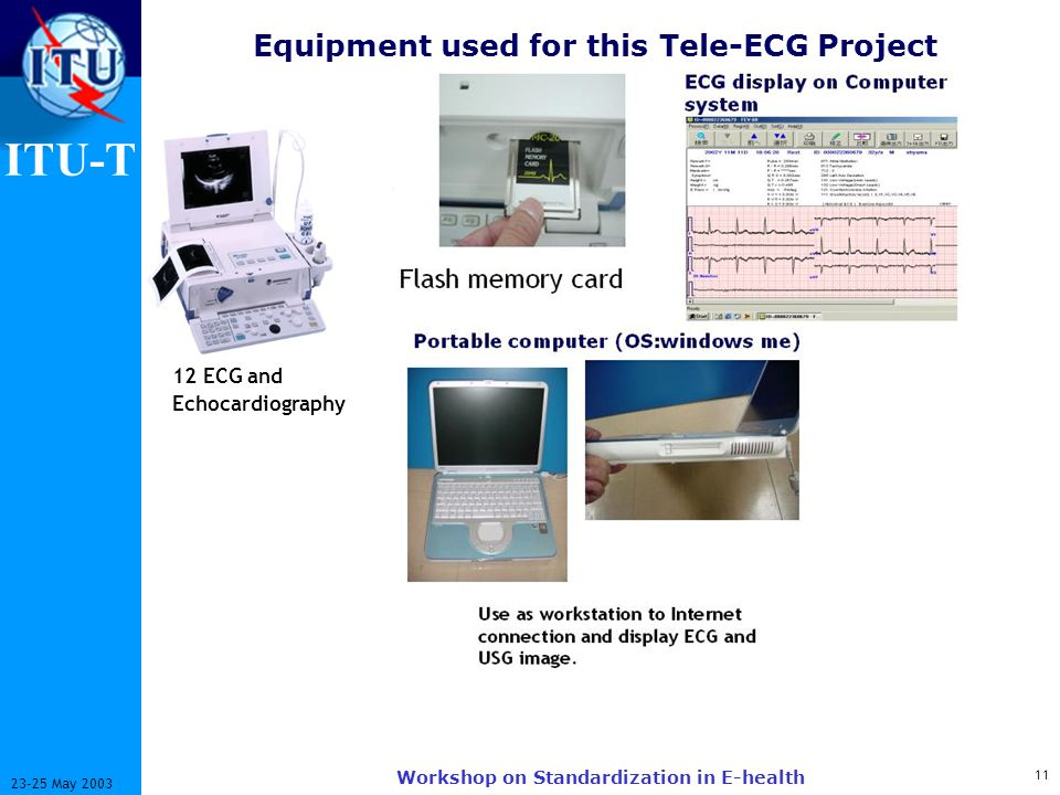 ITU-T May 2003 Workshop on Standardization in E-health Equipment used for this Tele-ECG Project 12 ECG and Echocardiography