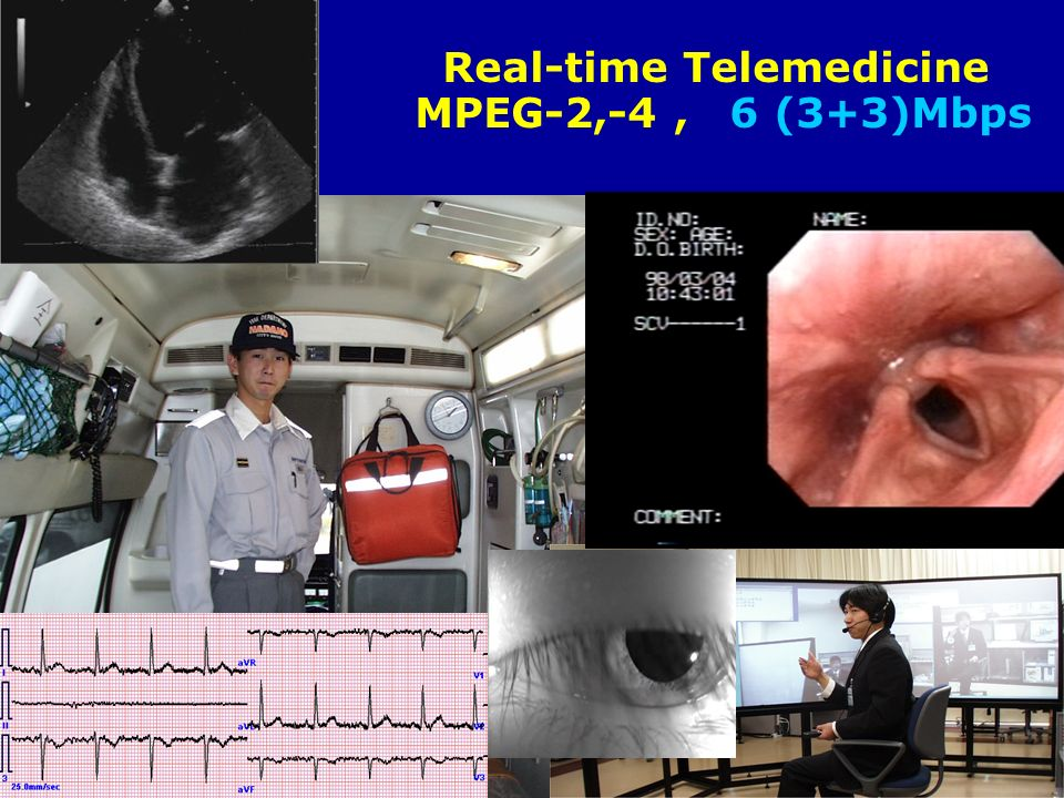 Real-time Telemedicine MPEG-2,-4, 6 (3+3)Mbps