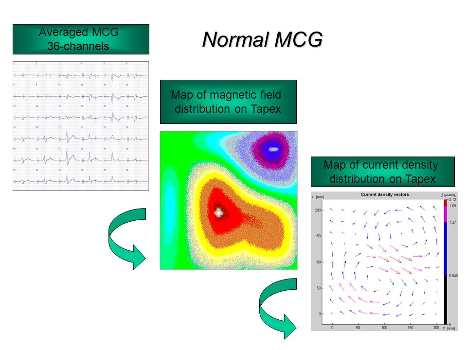 5 Map of magnetic field distribution on Tapex Averaged MCG 36-channels Map of current density distribution on Tapex Normal MCG