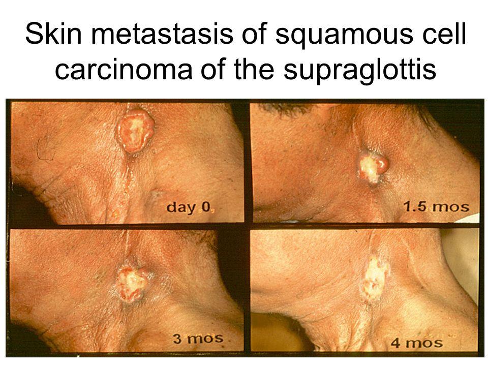Skin metastasis of squamous cell carcinoma of the supraglottis