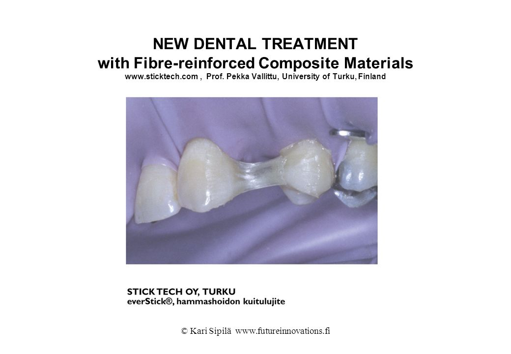 © Kari Sipilä www.futureinnovations.fi NEW DENTAL TREATMENT with Fibre-reinforced Composite Materials www.sticktech.com, Prof. Pekka Vallittu, Univers