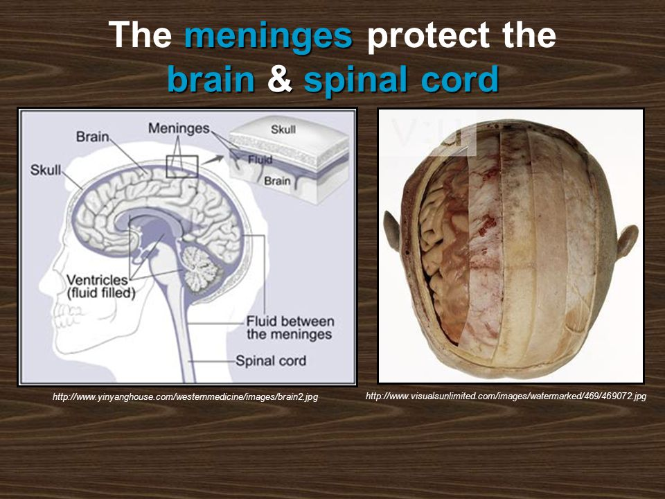 meninges brain&spinal cord The meninges protect the brain & spinal cord http://www.visualsunlimited.com/images/watermarked/469/469072.jpg http://www.yinyanghouse.com/westernmedicine/images/brain2.jpg