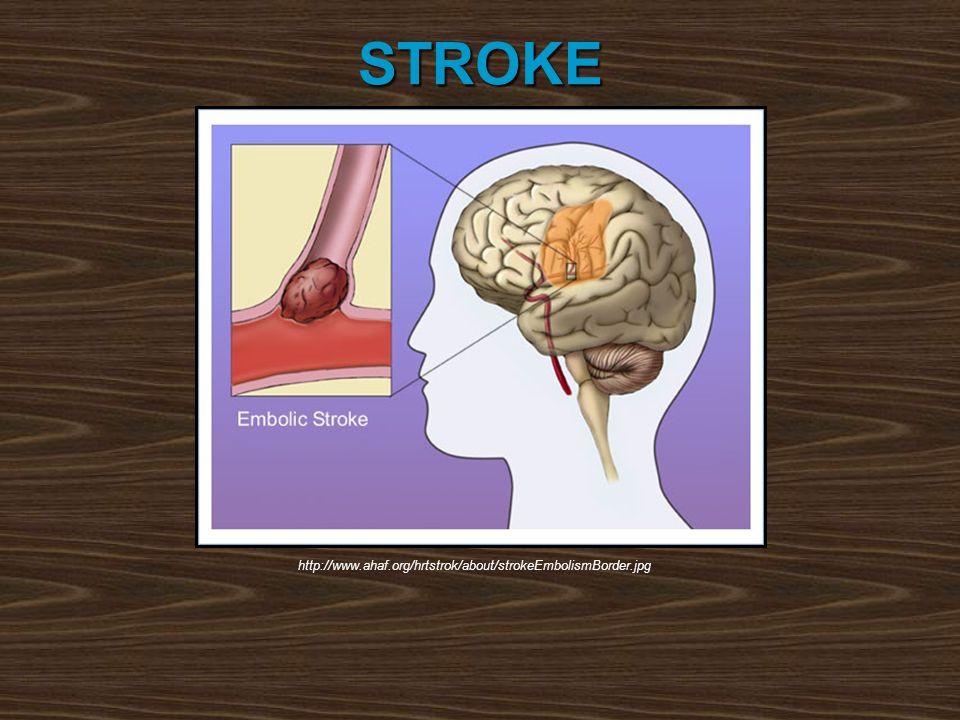 STROKE http://www.ahaf.org/hrtstrok/about/strokeEmbolismBorder.jpg