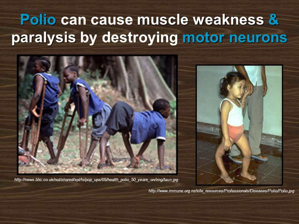 Poliomuscle weakness& paralysismotor neurons Polio can cause muscle weakness & paralysis by destroying motor neurons http://news.bbc.co.uk/nol/shared/spl/hi/pop_ups/05/health_polio_50_years_on/img/laun.jpg http://www.immune.org.nz/site_resources/Professionals/Diseases/Polio/Polio.jpg