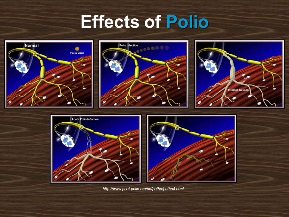http://www.post-polio.org/cd/patho/patho4.html Polio Effects of Polio