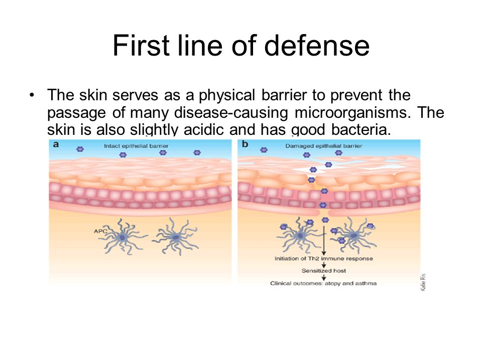 First line of defense The skin serves as a physical barrier to prevent the passage of many disease-causing microorganisms.