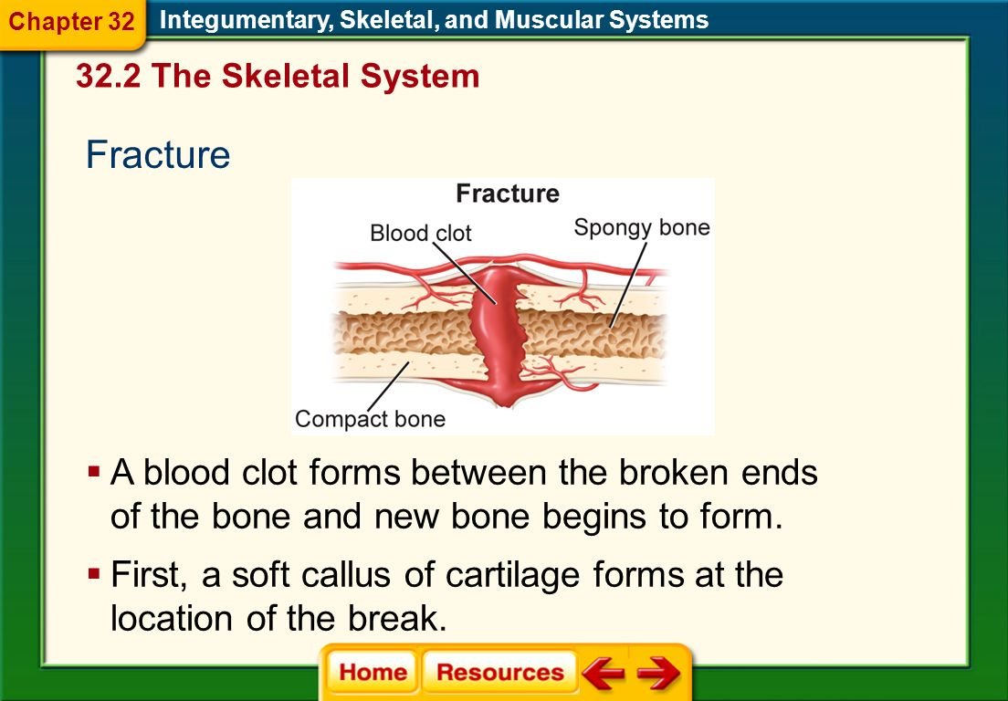 Repair of Bone When a bone breaks but does not come through the skin, it is a simple fracture. Integumentary, Skeletal, and Muscular Systems A compoun