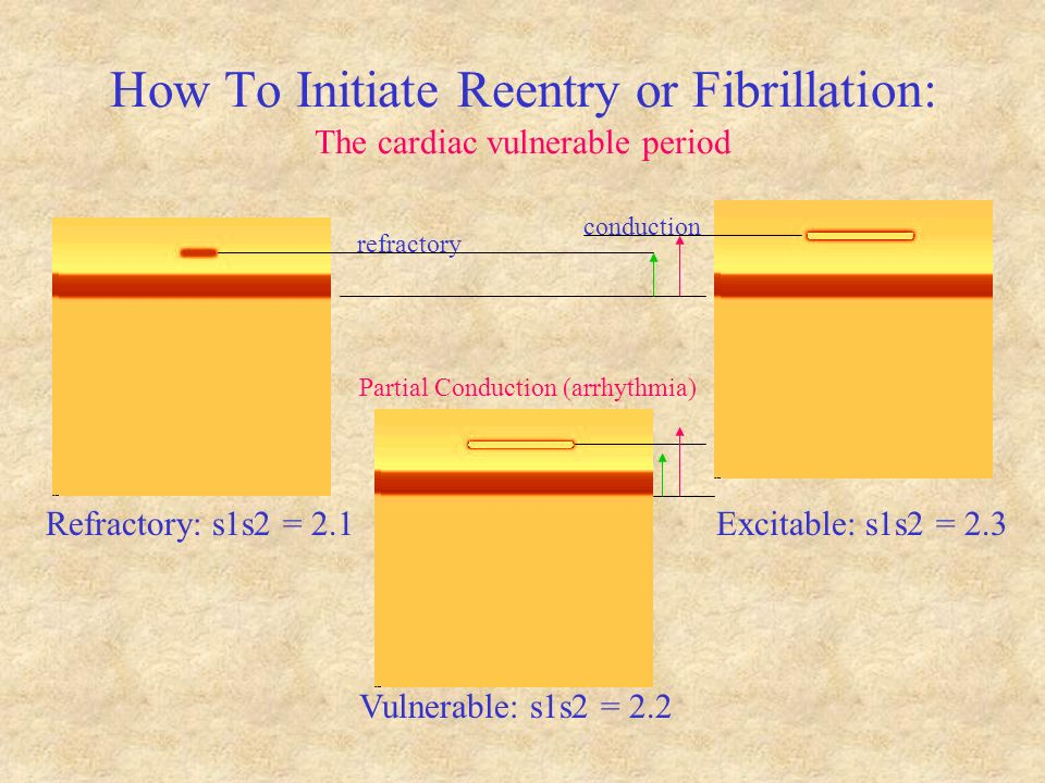 How To Initiate Reentry or Fibrillation: The cardiac vulnerable period Refractory: s1s2 = 2.1 Vulnerable: s1s2 = 2.2 Excitable: s1s2 = 2.3 refractory conduction Partial Conduction (arrhythmia)