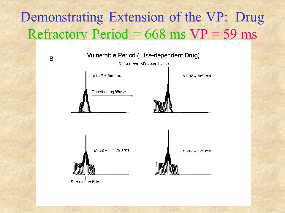 Demonstrating Extension of the VP: Drug Refractory Period = 668 ms VP = 59 ms