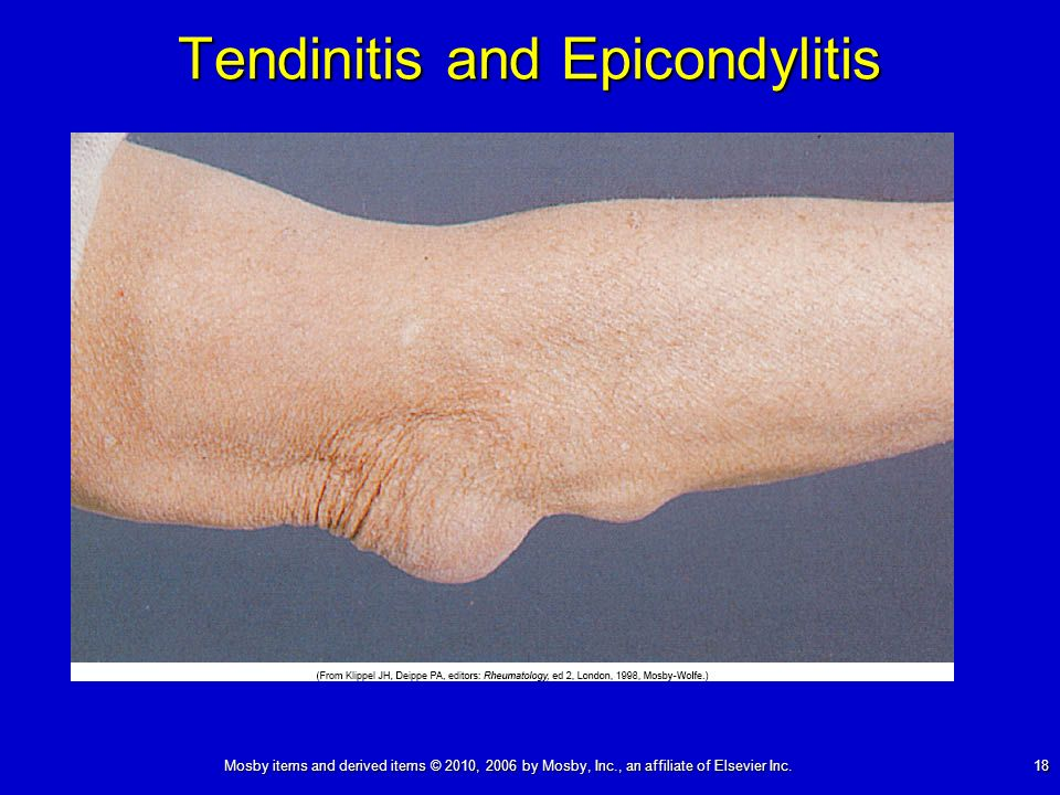 Mosby items and derived items © 2010, 2006 by Mosby, Inc., an affiliate of Elsevier Inc. 18 Tendinitis and Epicondylitis
