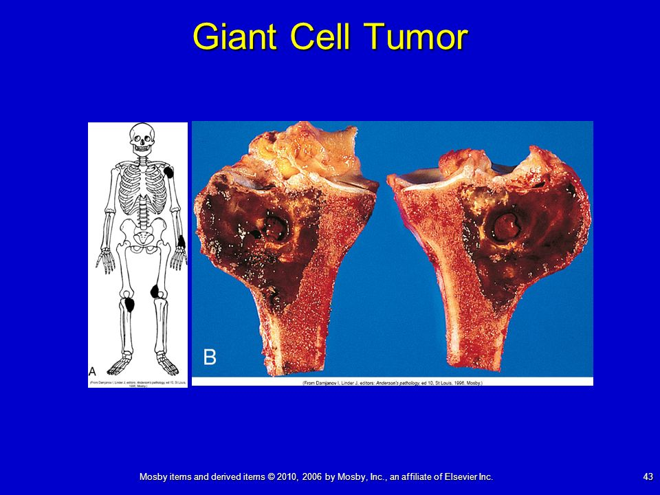 Mosby items and derived items © 2010, 2006 by Mosby, Inc., an affiliate of Elsevier Inc. 43 Giant Cell Tumor