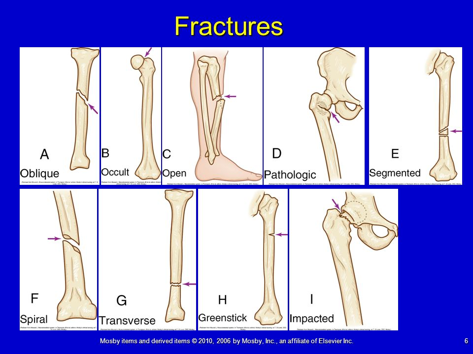 Mosby items and derived items © 2010, 2006 by Mosby, Inc., an affiliate of Elsevier Inc. 6 Fractures