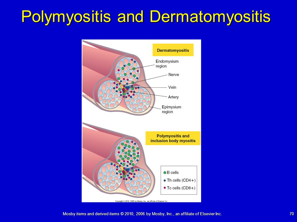 Mosby items and derived items © 2010, 2006 by Mosby, Inc., an affiliate of Elsevier Inc. 70 Polymyositis and Dermatomyositis