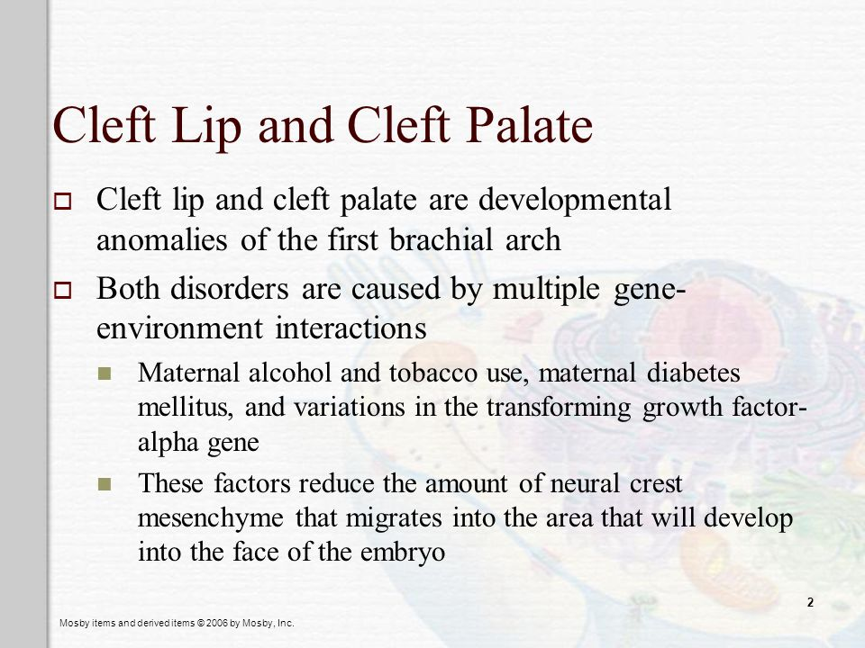 Mosby items and derived items © 2006 by Mosby, Inc. 2 Cleft Lip and Cleft Palate Cleft lip and cleft palate are developmental anomalies of the first b