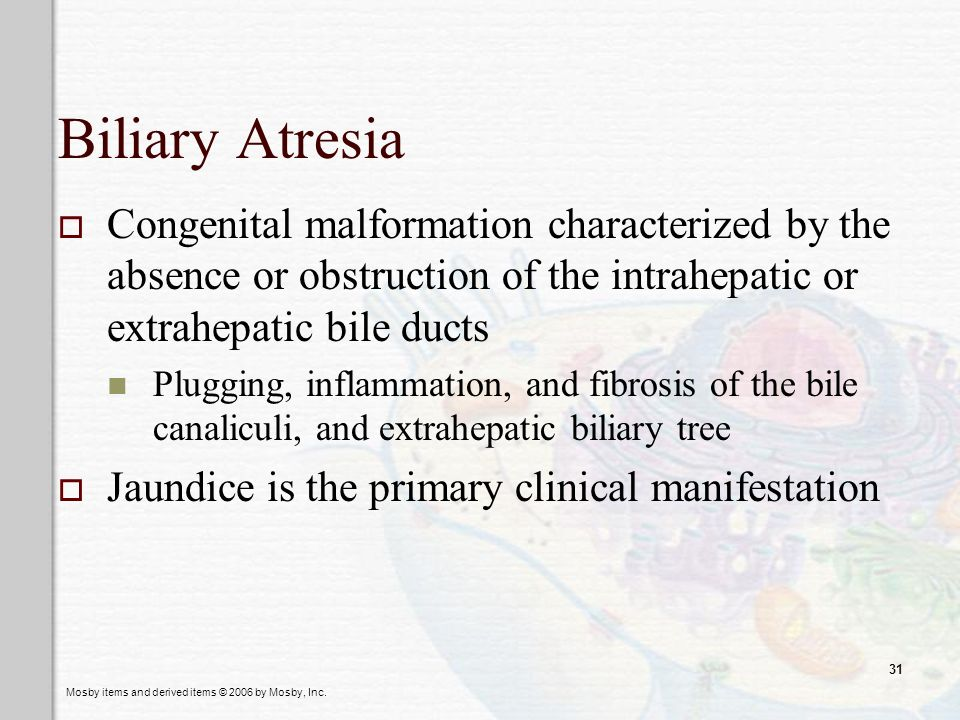Mosby items and derived items © 2006 by Mosby, Inc. 31 Biliary Atresia Congenital malformation characterized by the absence or obstruction of the intr