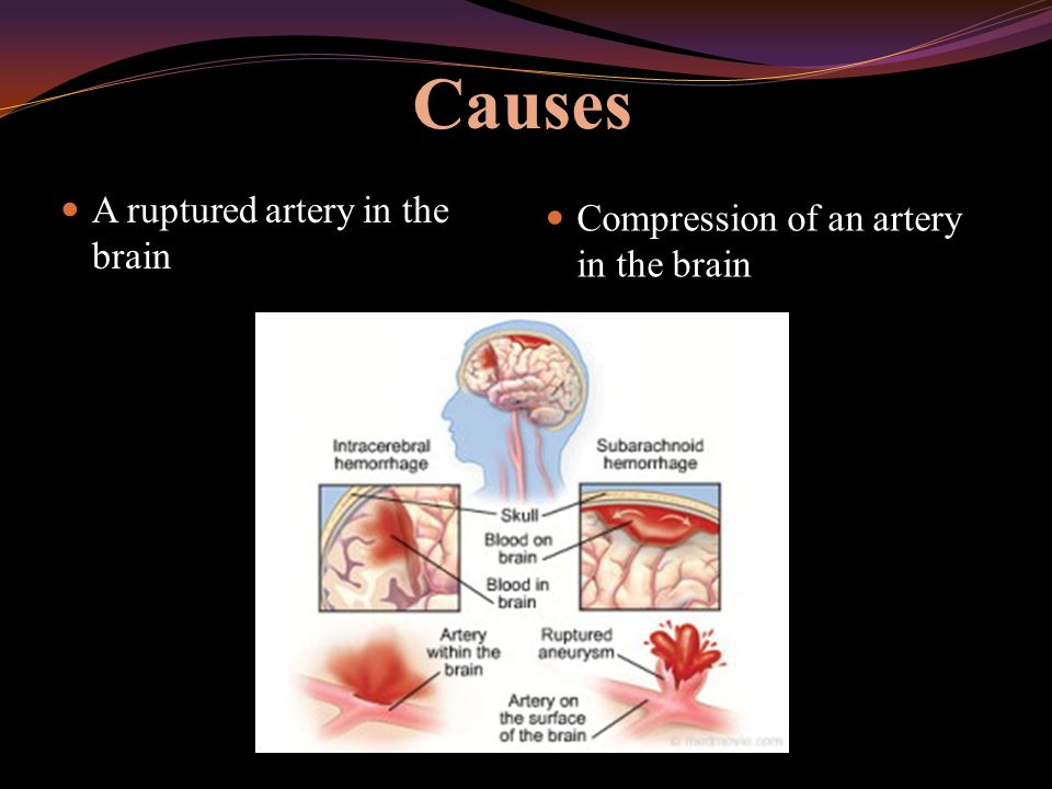 Causes A ruptured artery in the brain Compression of an artery in the brain