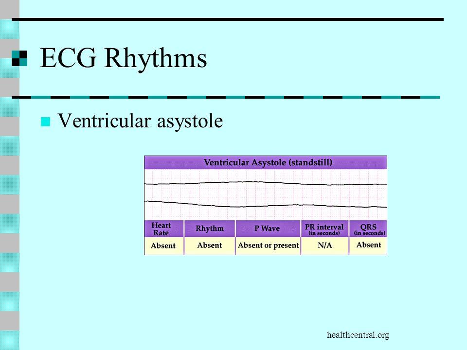 Healthcentral Org Ecg Rhythms