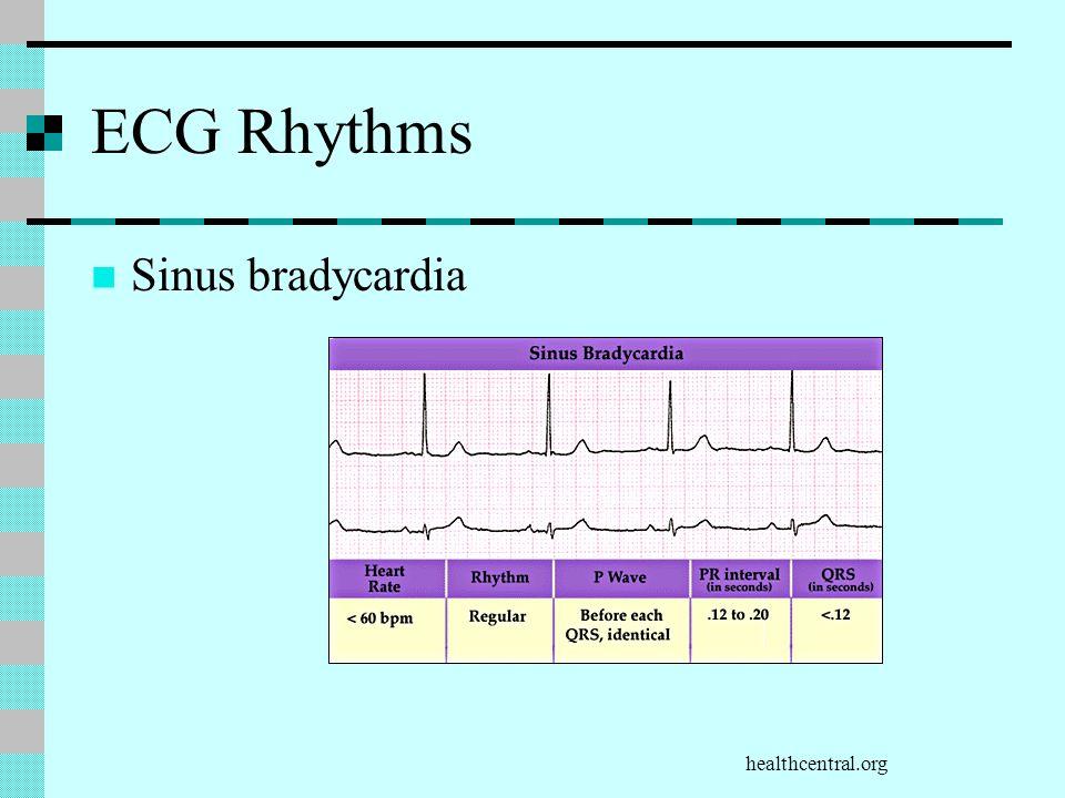 healthcentral.org ECG Rhythms Sinus bradycardia