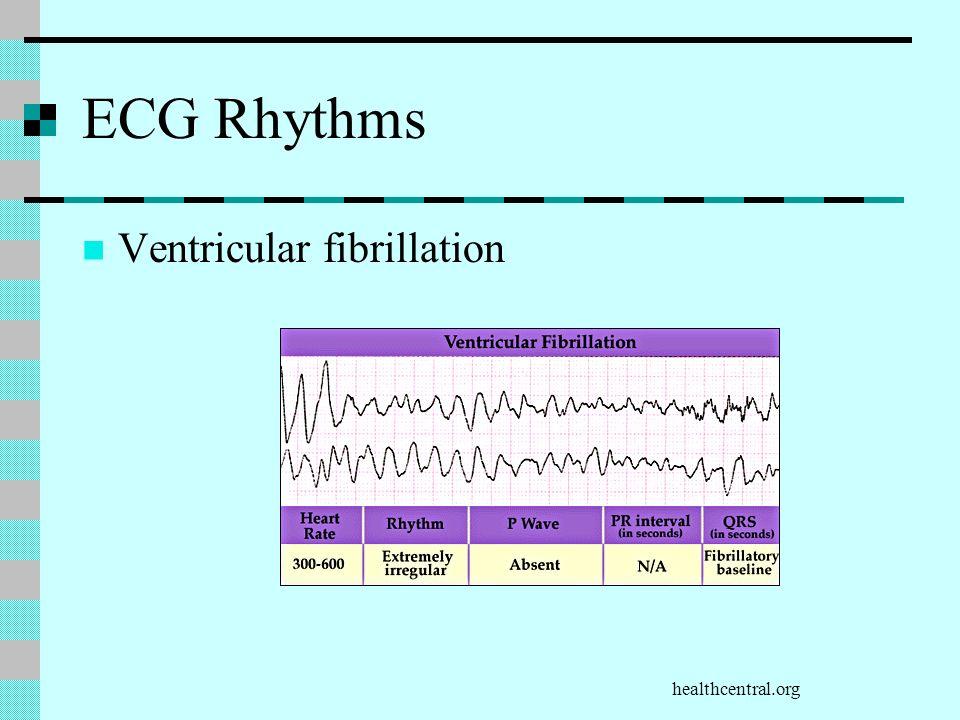 healthcentral.org ECG Rhythms Ventricular fibrillation