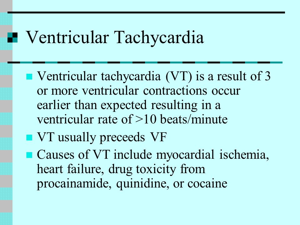 Ventricular Tachycardia Ventricular tachycardia (VT) is a result of 3 or more ventricular contractions occur earlier than expected resulting in a vent