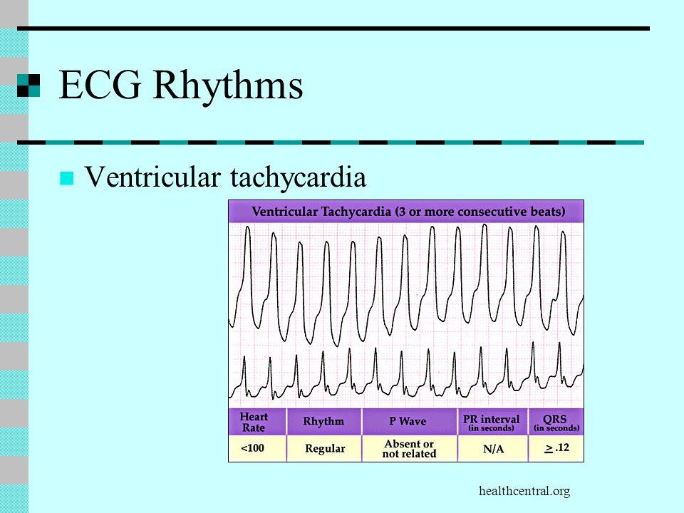 healthcentral.org ECG Rhythms Ventricular tachycardia