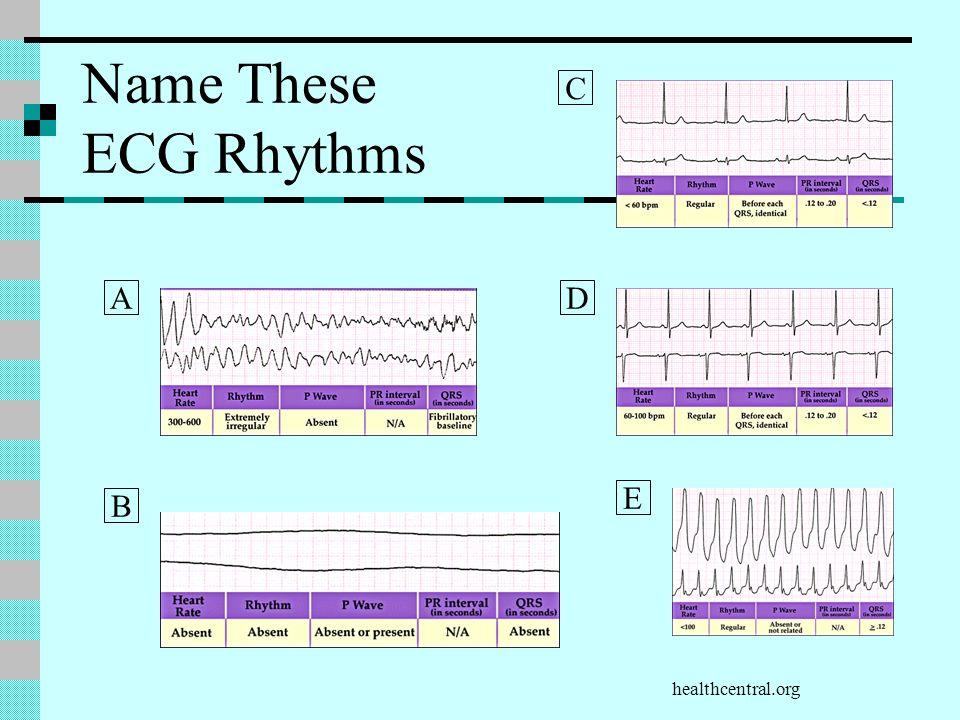 healthcentral.org Name These ECG Rhythms A B D E C