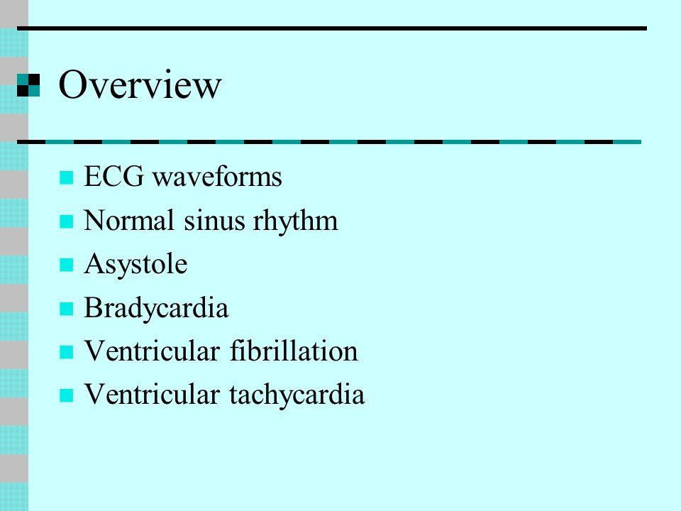 Overview ECG waveforms Normal sinus rhythm Asystole Bradycardia Ventricular fibrillation Ventricular tachycardia