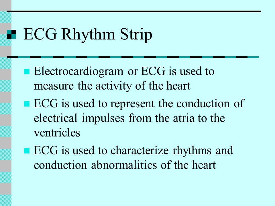 ECG Rhythm Strip Electrocardiogram or ECG is used to measure the activity of the heart ECG is used to represent the conduction of electrical impulses