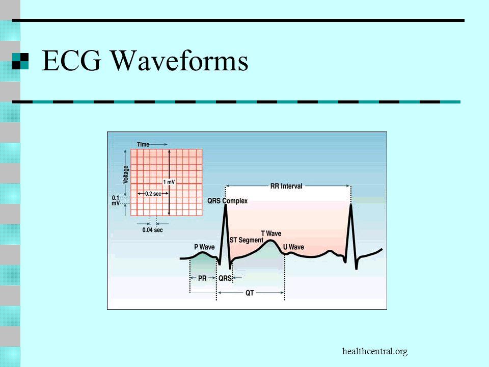 healthcentral.org ECG Waveforms