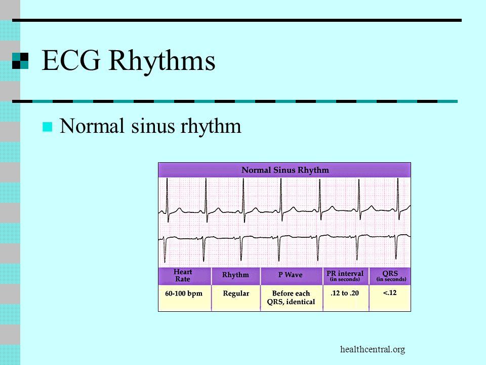 healthcentral.org ECG Rhythms Normal sinus rhythm