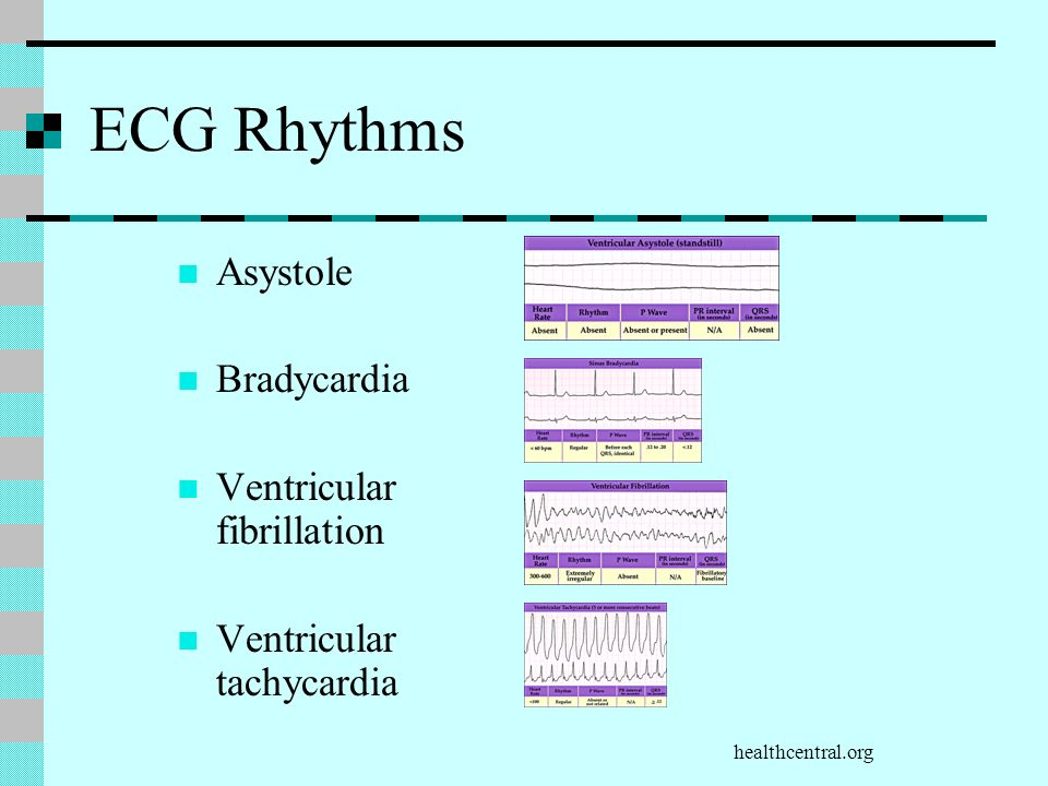 healthcentral.org ECG Rhythms Asystole Bradycardia Ventricular fibrillation Ventricular tachycardia