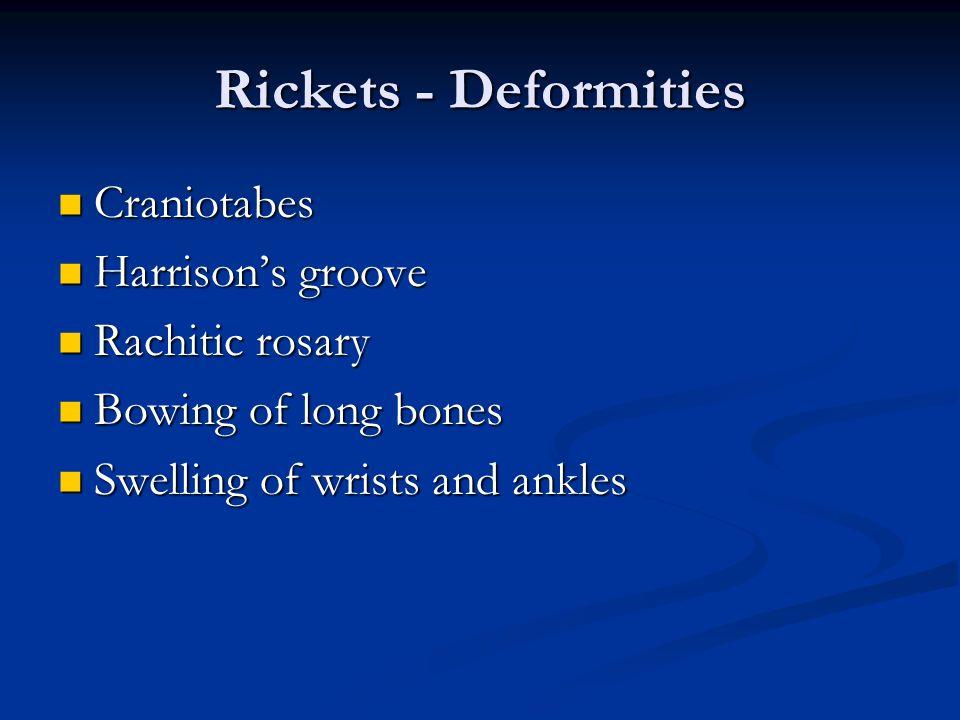 Rickets - Deformities Craniotabes Craniotabes Harrisons groove Harrisons groove Rachitic rosary Rachitic rosary Bowing of long bones Bowing of long bo