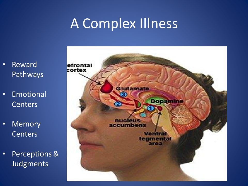 A Complex Illness Reward Pathways Emotional Centers Memory Centers Perceptions & Judgments