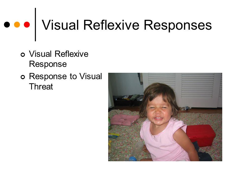 Visual Reflexive Responses Visual Reflexive Response Response to Visual Threat