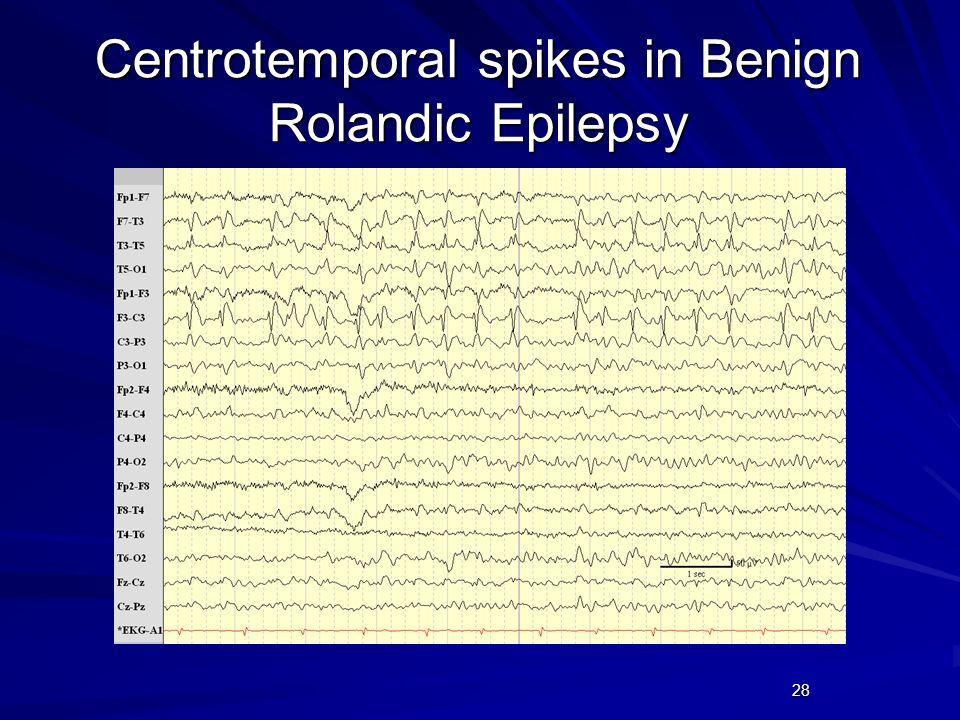28 Centrotemporal spikes in Benign Rolandic Epilepsy