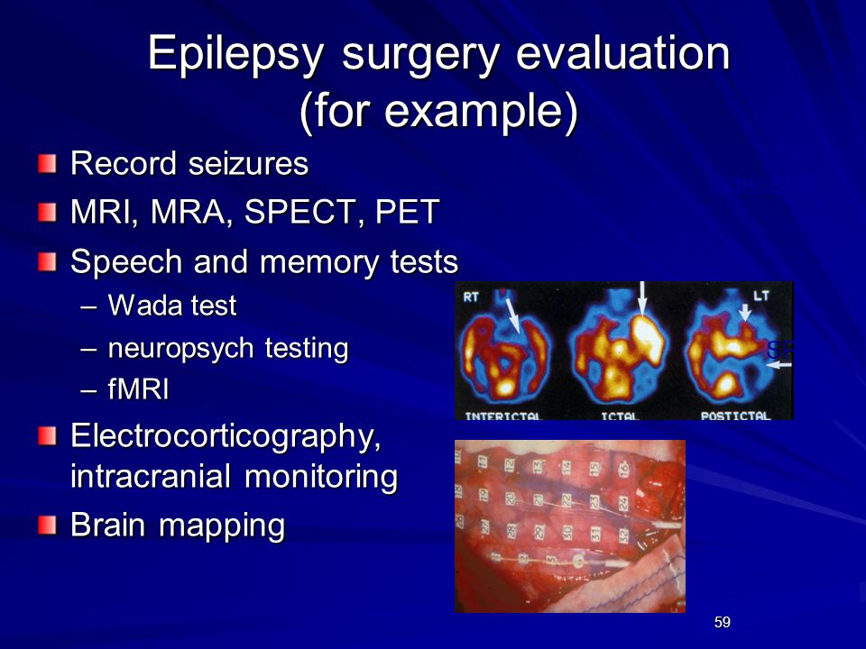 59 Epilepsy surgery evaluation (for example) Record seizures MRI, MRA, SPECT, PET Speech and memory tests –Wada test –neuropsych testing –fMRI Electro