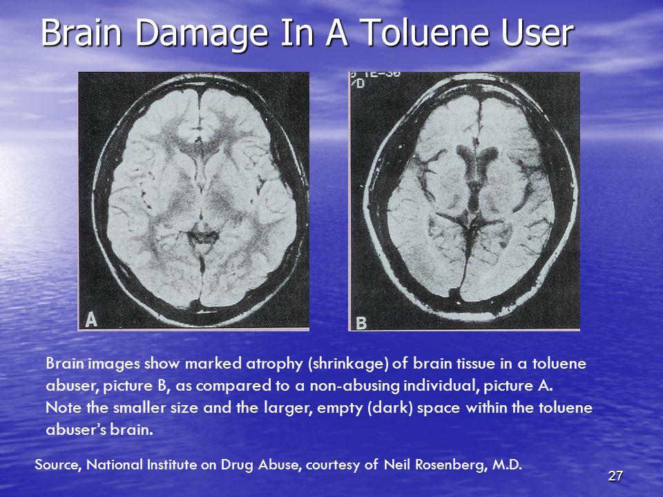 27 Brain Damage In A Toluene User Brain Damage In A Toluene User Brain images show marked atrophy (shrinkage) of brain tissue in a toluene abuser, pic