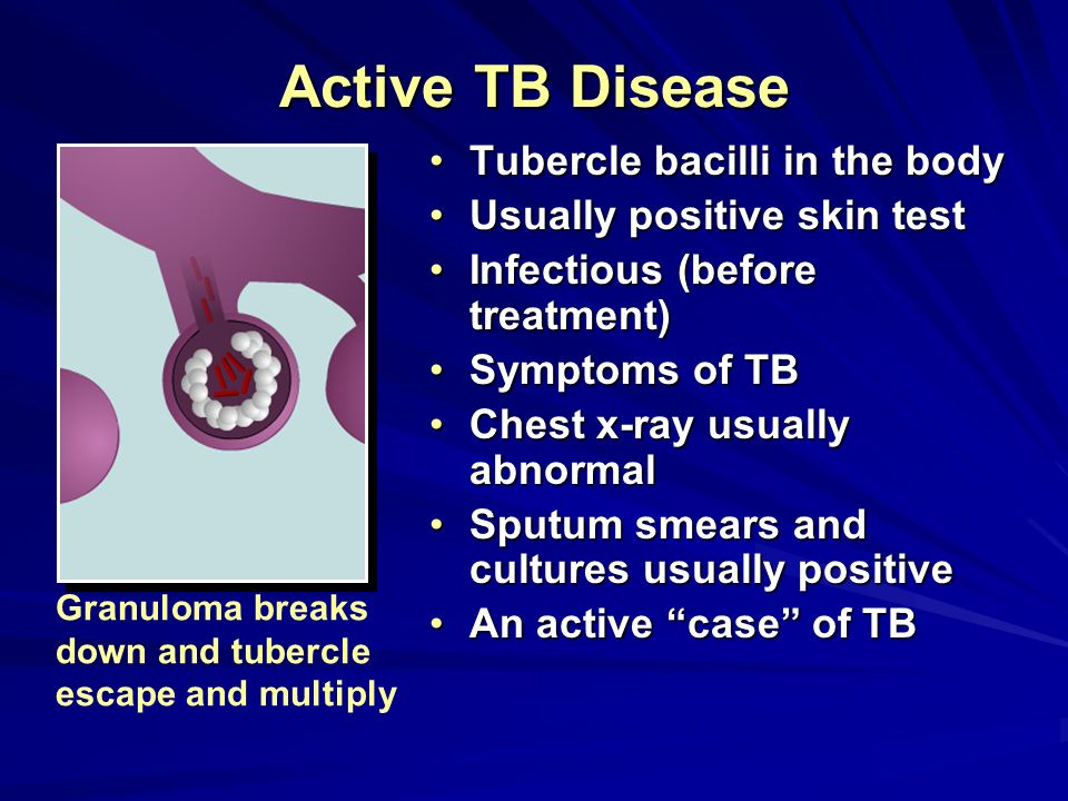 (Note: the CDC discourages testing of people at low risk for infection.) Interpreting Tuberculin Skin Test Reactions 5 mm or greater 10 mm or greater 15 mm or greater HIV positive personsHIV positive persons Recent contacts of persons with active tuberculosisRecent contacts of persons with active tuberculosis Fibrotic changes on chest radiograph, consistent with tuberculosisFibrotic changes on chest radiograph, consistent with tuberculosis Patients with organ transplants and other immunosuppressed patientsPatients with organ transplants and other immunosuppressed patients Immigrants from high- prevalence areasImmigrants from high- prevalence areas Injection drug usersInjection drug users Residents and employees* of high-risk congregate settingsResidents and employees* of high-risk congregate settings Personnel in mycobacteriology laboratoriesPersonnel in mycobacteriology laboratories Persons with clinical conditions that place them at high riskPersons with clinical conditions that place them at high risk Children: <4 years of age; all exposed to adults at high-riskChildren: <4 years of age; all exposed to adults at high-risk No known risk factors