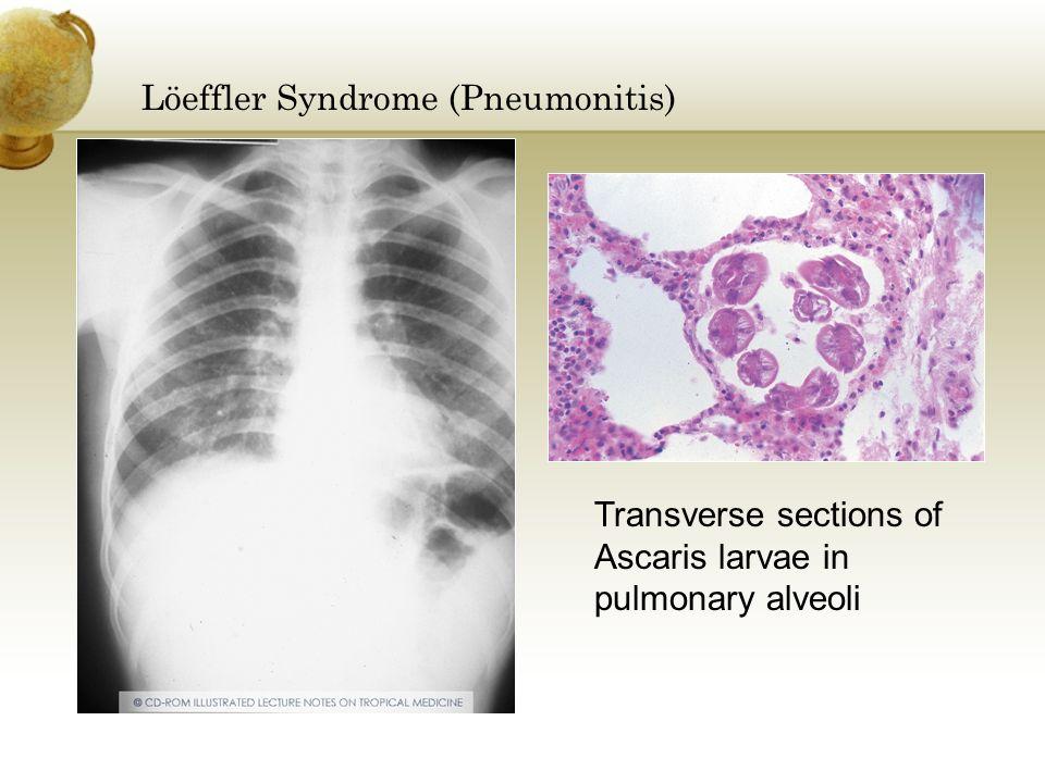 Löeffler Syndrome (Pneumonitis) Transverse sections of Ascaris larvae in pulmonary alveoli