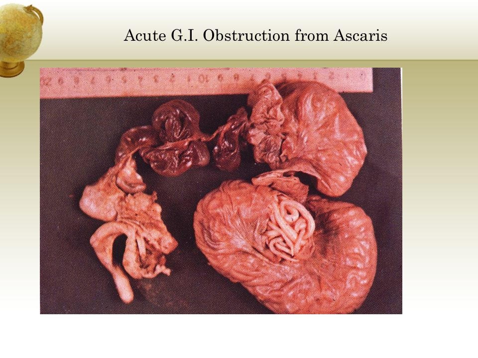 Acute G.I. Obstruction from Ascaris